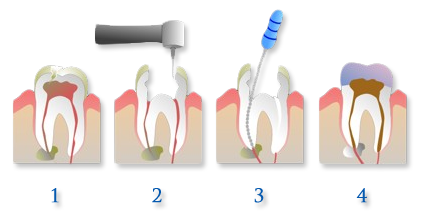 Visual Demonstration of removal and filling of a root canal. Family Dentistry Dr. Lisa Landesman, Camellia Creek Dental