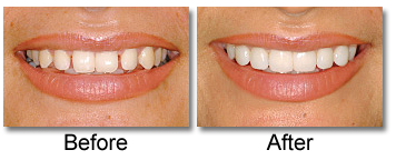 Porcelain Veneers before and after with Dr. Lisa Mandeville Family Dentistry